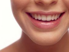 Ce este bine sa stii despre albirea dintilor
