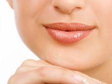 Cum sa tratezi aftele bucale