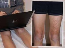 Laptopul provoaca arsuri pielii si creste riscul de cancer