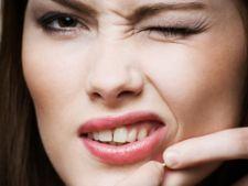 Cum sa previi cicatricile lasate de acnee