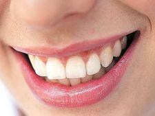 Cum sa previi eroziunea dintilor