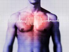 Tahicardia - bataile neregulate ale inimii