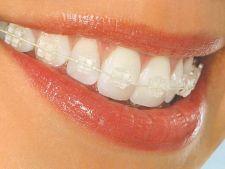 Ce trebuie sa stii despre aparatul dentar Safir