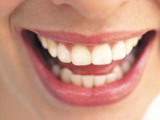 Depozitele de calciu de pe dinti