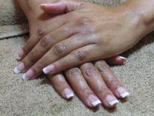 Geluri UV - riscuri pentru sanatate
