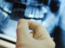Radiografiile dentare dubleaza riscul de tumoare pe creier