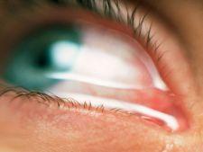 Conjunctivita alergica - cauze, simptome, tratament