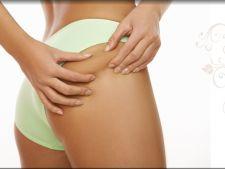 Cum sa te pregatesti pentru o operatie de liposuctie