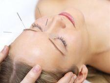 Ce poti trata cu acupunctura