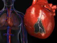 Ghidul afectiunilor cardiace