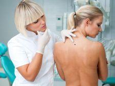 Semne ca ai putea avea cancer de piele
