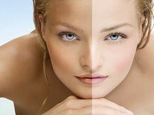 Cum sa iti albesti pielea in mod natural
