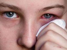 Ce trebuie sa stii despre alergiile ochilor