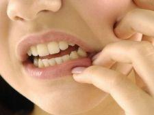 Cum scapi definitiv de durerile de dinti