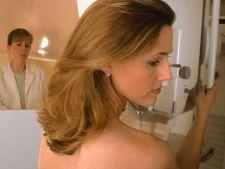 Rezultatul fals pozitiv al mamografiei are efecte asupra psihicului femeii
