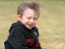 Povestea copilului cu vene albastre pe frunte: sufera de trei boli care pot fi fatale