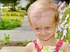 Top 4 cele mai rare boli din lume