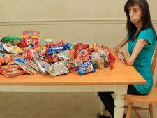 Boli rare in lume: Fata care trebuie sa manance la fiecare 15 minute pentru a supravietui