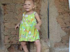 Cazul incredibil al unei femei de 32 de ani care arata ca un bebelus de 9 luni