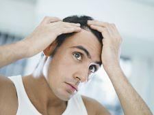 Solutii naturale pentru combaterea caderii parului la barbati