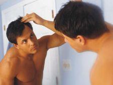 Veste buna pentru barbatii cu chelie! Un nou remediu surprinzator promite sa trateze calvitia
