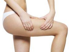 Tratamente pentru vergeturi: cum estompezi urmele inestetice de pe coapse si abdomen