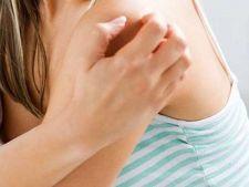 Boli bizare: Morgellons, afectiunea reala care pleaca din imaginar