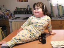 Boli rare: Sindromul sirena, afectiunea ciudata care curma vieti fragede