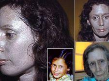 Boli rare:  Femeia cu pielea argintie. Ce medicament banal i-a distrus viata