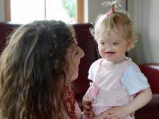 Boli rare: Incredibila poveste a fetitei care s-a nascut fara nas