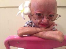 Boli rare: Adalia, fetita de 6 ani cu progeria care a cucerit internetul