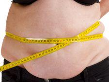 Alarmant! Obezitatea favorizeaza 7 tipuri de cancer!
