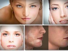 Ce trebuie sa stii despre vitiligo
