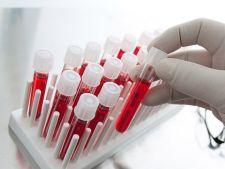 Un simplu test de sange iti arata daca ai cancer ovarian