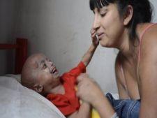 Un baietel de patru ani, captiv in corpul unui batran, din cauza unei boli rare