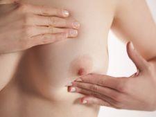 Tot ce trebuie sa stii despre cancerul la san si prevenirea lui