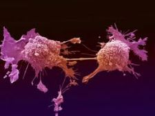 Suntem pe primul loc in Europa la numarul de cancere!