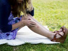 Tratamentul preventiv in caz de muscatura de capusa. Ce sa nu faci cu niciun chip!