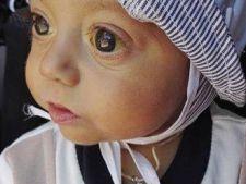 bebelus transplant