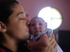 bebelus microcefalie zika