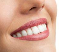 Puntea dentara vs implantul dentar. Avantaje si dezavantaje
