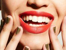 Implantul dentar – inlocuirea dintilor lipsa intr-o maniera eficienta si sigura