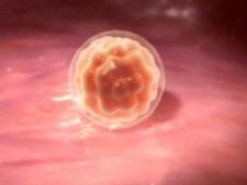 blastocist