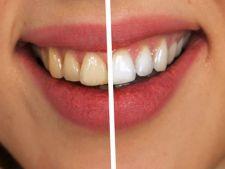 Cele mai ieftine metode de albire a dintilor acasa