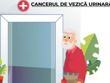animatie cancer vezica urinara