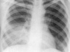 454047 0810 pneumonie