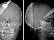 468239 0811 cutit in creier radiografie