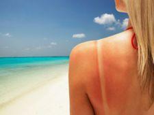 Melanom sau cancer de piele