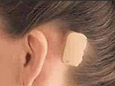 Bone Anchored Hearing Aid proteza auditiva