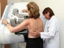 Ce este mamografia?